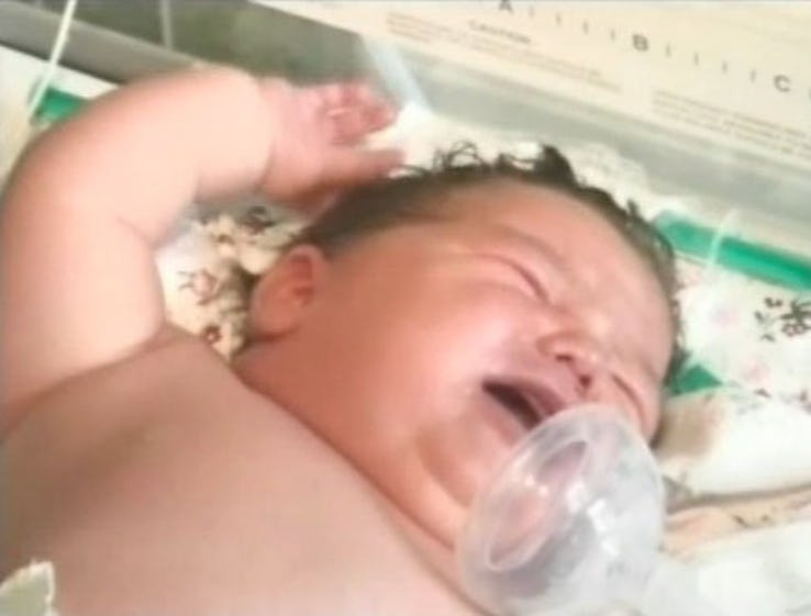 أسمن الأطفال حديثي الولادة - رومانيا