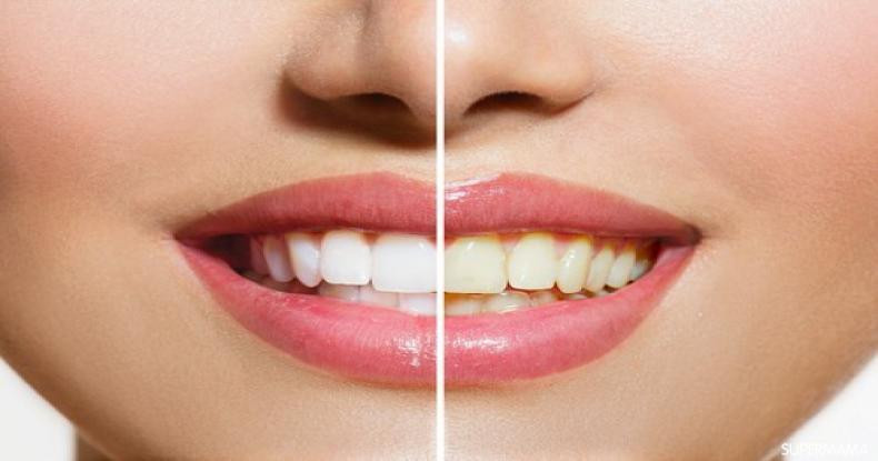 استخدامات الملح في تبييض الأسنان