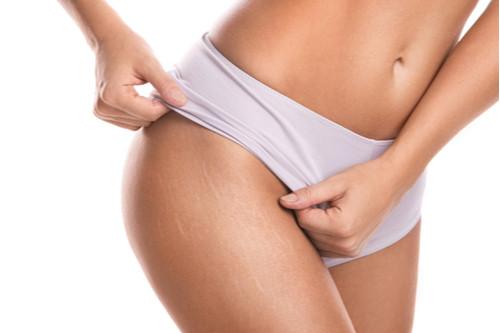 علاج علامات تمدد الجلد - هل تختفي علامات تمدد الجلد