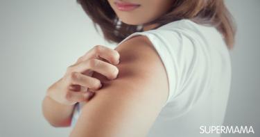 ما أفضل طريقة لإزالة آثار قرص الناموس