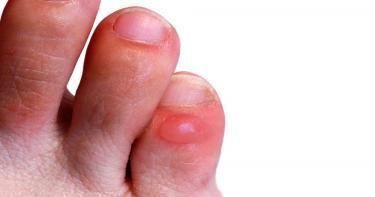 أسهل طرق التخلص من التقرحات الجلدية في القدمين
