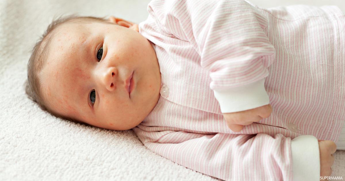 ما الفرق بين حساسية الألبان وحساسية اللاكتوز لدى الرضع سوبر ماما