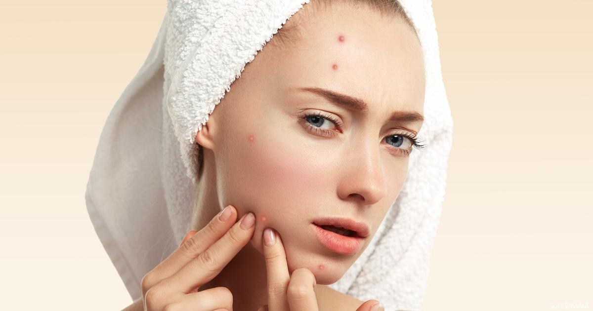 6 طرق تعالج التهاب حبوب الوجه سوبر ماما