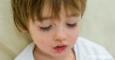 أعراض الحصبة عند الأطفال وعلاجها