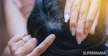 إنبات الشعر