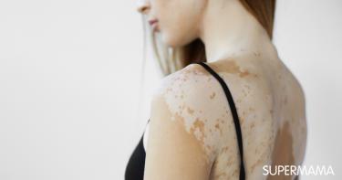 6 أسباب للإصابة بمرض البهاق