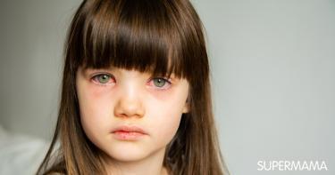 احمرار العين عند الأطفال