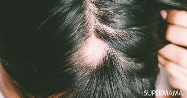 علاج الثعلبة في الرأس