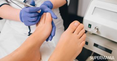 كيف يجري علاج فطريات الأظافر بالليزر سوبر ماما