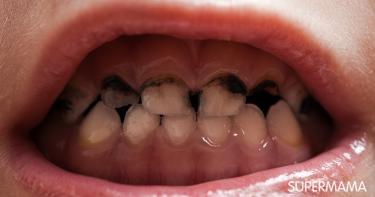 كيف يحدث تسوس الأسنان الأمامية سوبر ماما