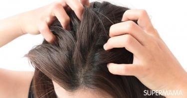 أسباب التهاب فروة الرأس سوبر ماما