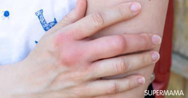 أعراض تورم الأصابع
