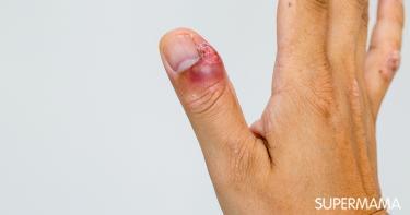 علاج الإصبع المدوحس في المنزل