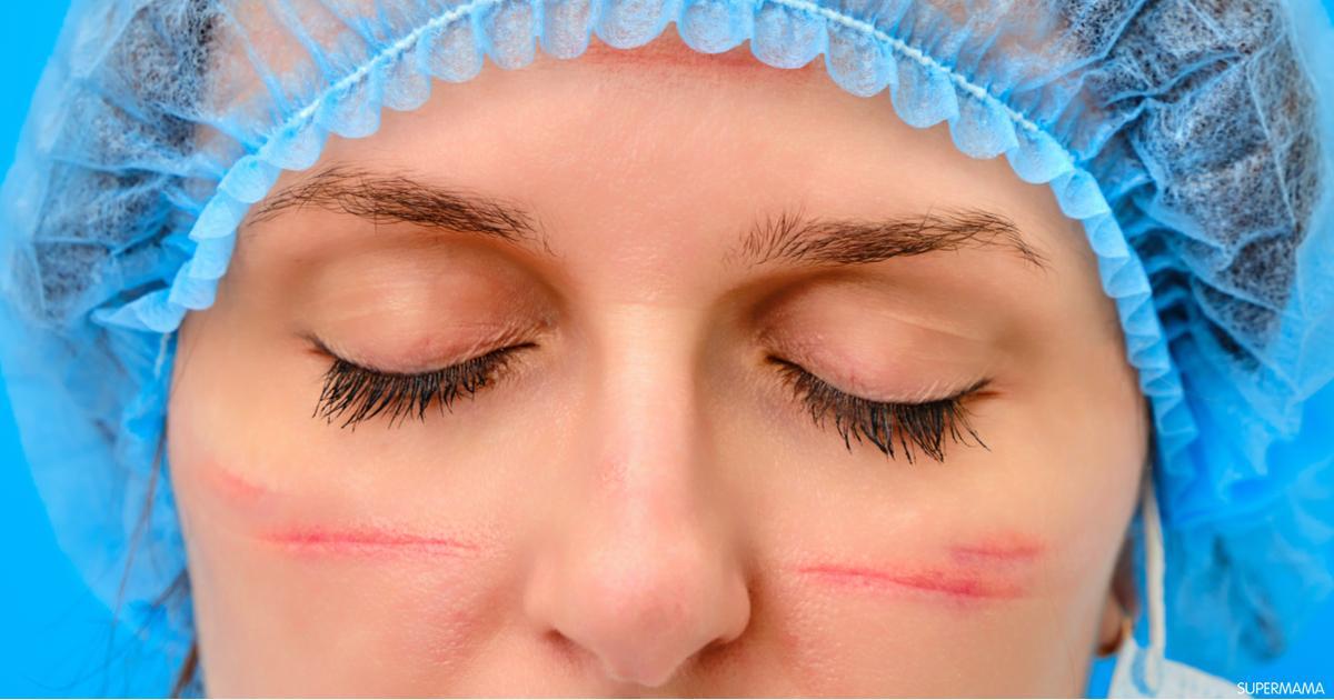 كيفية علاج آثار الجروح والخدوش في الوجه سوبر ماما