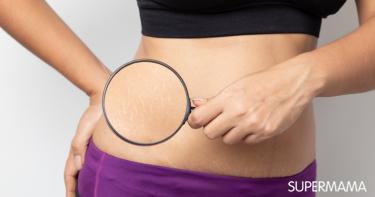 علاج الخطوط البيضاء في الجسم بزيت الزيتون