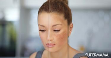 علاج الكلف في الوجه