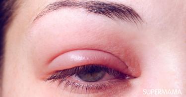 التهاب جفن العين