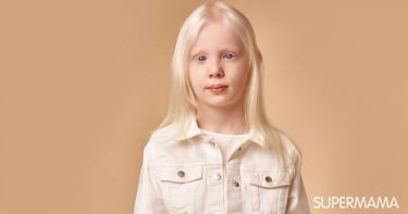 أعراض البرص عند الأطفال