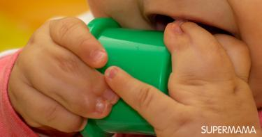 التصاق الأصابع عند الرضع