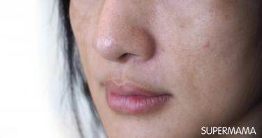 أسباب الجفاف حول الفم