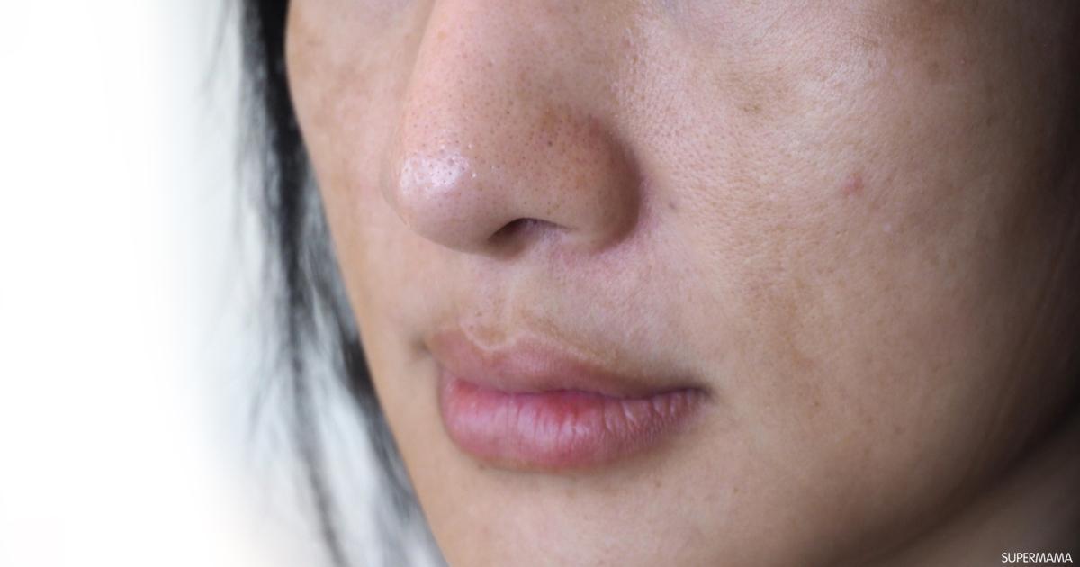 ما أسباب الجفاف حول الفم سوبر ماما