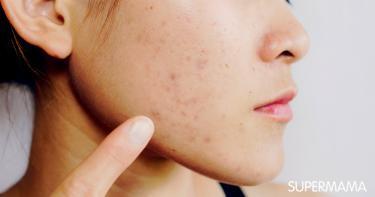 التخلص من آثار الحبوب في الوجه
