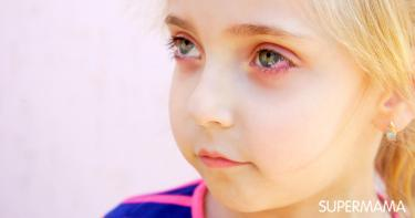 أسباب حساسية العيون عند الأطفال