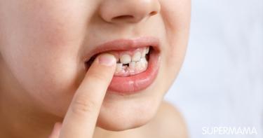 متى يبدأ تبديل الأسنان عند الأطفال