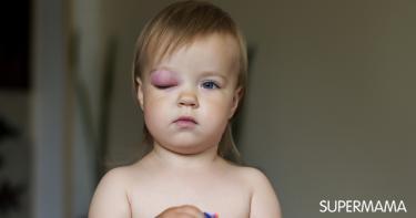 أسباب المتلازمة النفروزية عند الأطفال