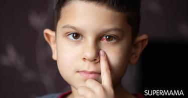 أسباب احمرار العين عند الأطفال