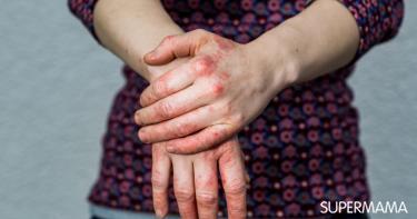 أعراض إكزيما اليدين
