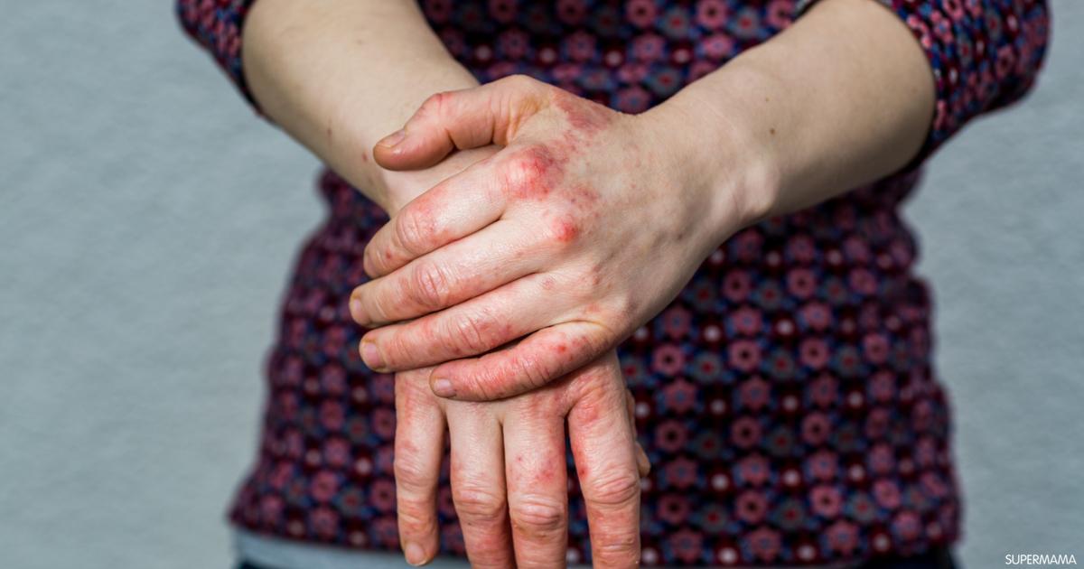 ما أعراض إكزيما اليدين سوبر ماما