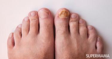 أعراض إكزيما الأظافر