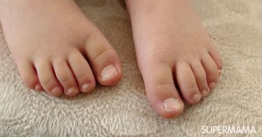 فطريات الأظافر عند الأطفال