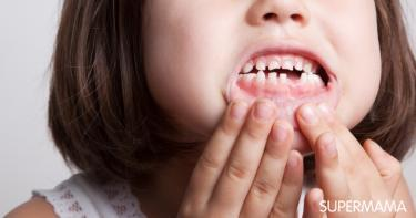 علاج الأسنان المتآكلة عند الأطفال