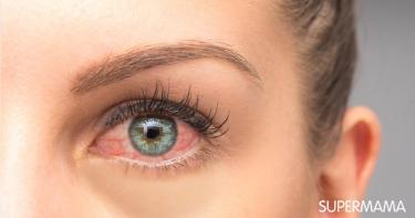 التهاب العين من العدسات