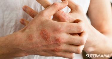 هل يمكن علاج الإكزيما بالعسل