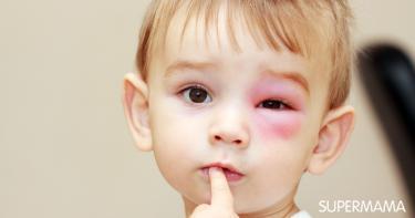 علاج كدمات العين عند الاطفال