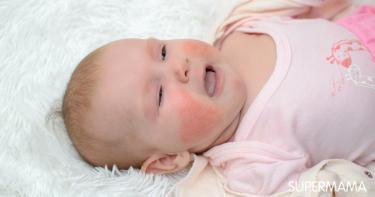 أعراض حساسية البيض عند الرضع وأهم أسبابها